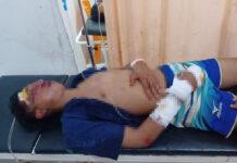 Salah satu yang kritis akibat adu kambing sepeda motor di Jalan Poros Kampung Gedung Karya Jitu